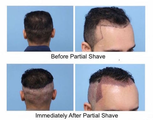 Partial Shave before having a FUE hair transplant