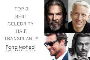 Best Celebrity Hair Transplants