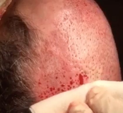 See how a pluggy hair transplant is corrected