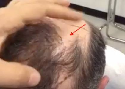 How pluggy hair transplant looks