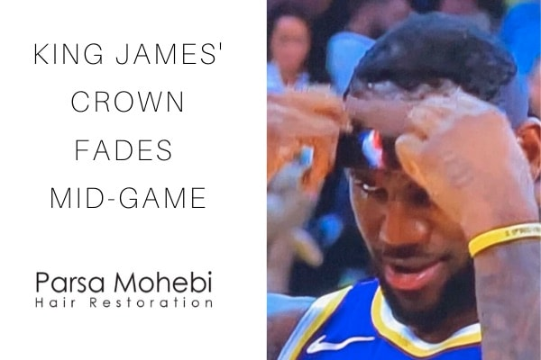 LeBron James Hair Recedes Mid-Game