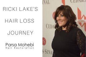Ricki Lake Hair Loss Struggle