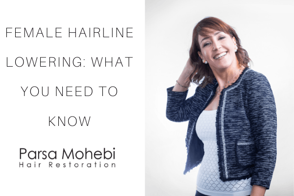female hairline lowering - everything you need to know