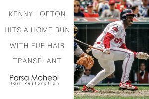 Kenny Lofton got fue hair transplant