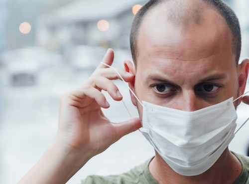 Research says balding men higher risk of severe coronavirus