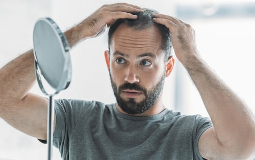 See the four facts you should know before a hair transplant