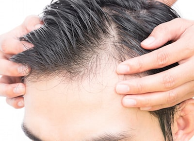 Why you should have hair transplant