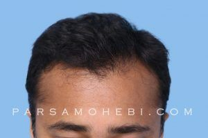 this is an image of hair transplant patient in Beverly Grove