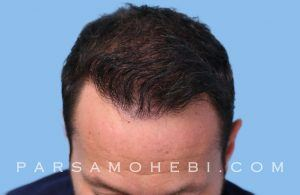 this is an image of hair transplant patient in Brisbane