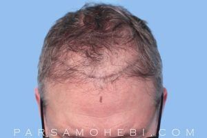 this is an image of hair transplant patient in Daly City