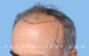 this is an image of hair transplant patient in Diamond Heights