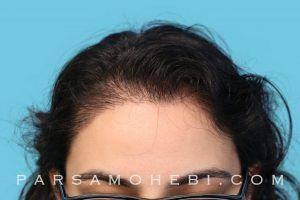 this is an image of hair transplant patient in Emeryville