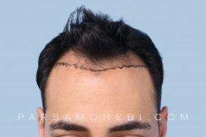 this is an image of hair transplant patient in Union Square