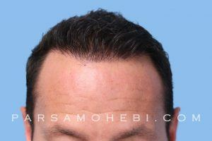 this is an image of hair transplant patient in Glen Park