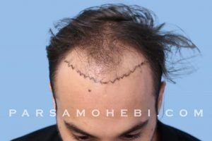 this is an image of hair transplant patient in Haight Ashbury