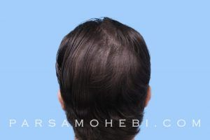 this is an image of hair transplant patient from LA