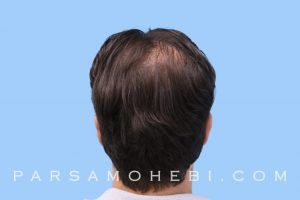 this is an image of hair transplant patient in LA