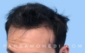 this is an image of hair transplant patient in Lake Balboa