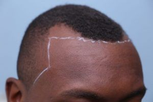this is an image of hair transplant patient in Noe Valley