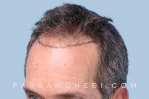 this is an image of hair transplant patient in Northridge