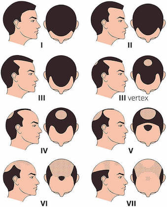 Norwood hair loss scale to determine hair loss