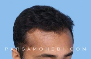 this is an image of hair transplant patient in Pacific Heights