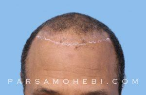 this is an image of hair transplant patient in Potrero Hill