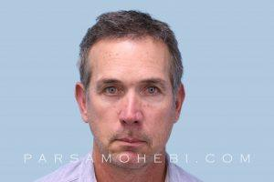 this is an image of hair transplant patient in Presidio of San Francisco