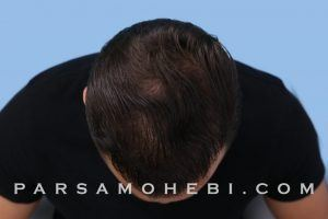 this is an image of hair transplant patient in Richmond District