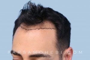this is an image of hair transplant patient in San Bruno