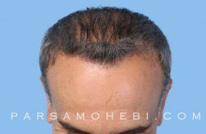 this is an image of hair transplant patient in Sausalito