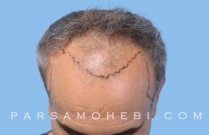 this is an image of hair transplant in Sausalito