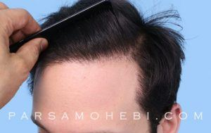 this is an image of hair transplant patient in Sherman Oaks