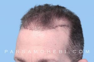 this is an image of a hair transplant patient in South San Francisco