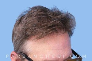 this is an image of hair transplant patient in Valley Glen