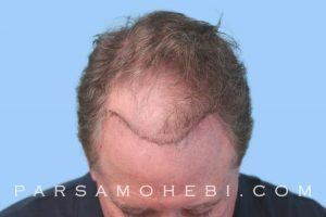 this is an image of hair transplant patient in Vinci