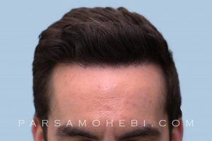 this is an image of hair transplant patient in West Hollywood