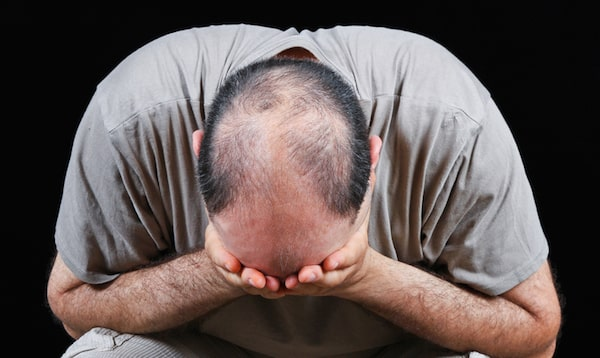 Cause of hair loss and how to fight it