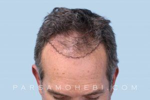 this is an image of hair transplant patient in Holmby Hills