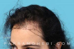 this is an image of hair transplant patient in Jackson Square