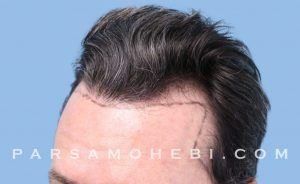 this is an image of hair transplant patient in SoMa