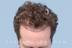 this is an image of hair transplant patient in South Beach