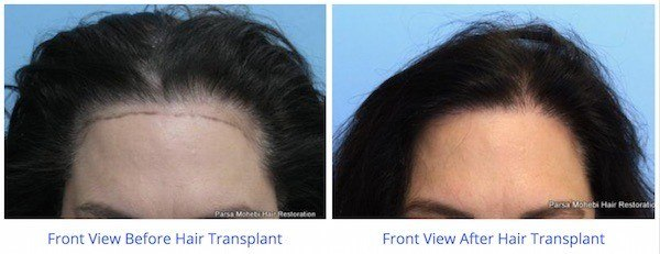 this is an image of hair transplant patient in Bel Air
