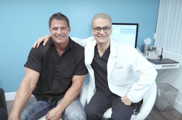 this is an image of hair transplant patient in Van Nuys