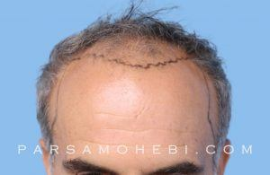 this is an image of hair transplant patient in Albany