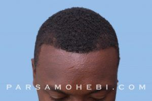 this is an image of hair transplant patient in Cupertino
