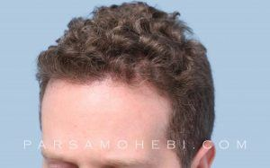this is an image of hair transplant patient in Fairfield