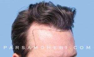 this is an image of hair transplant patient in Fremont
