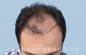 this is an image of hair transplant patient in Hayward