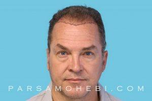 this is an image of hair transplant patient in Mill Valley